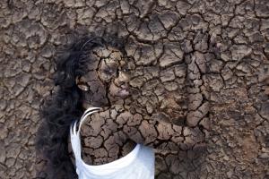 dry-skin-black